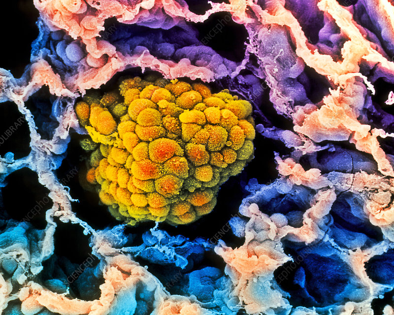 Coloured SEM of a cancerous tumour in the lung