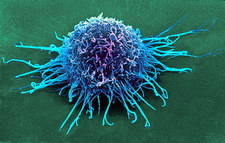 Coloured SEM of a cancer cell