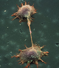 SEM of prostate cancer cell division