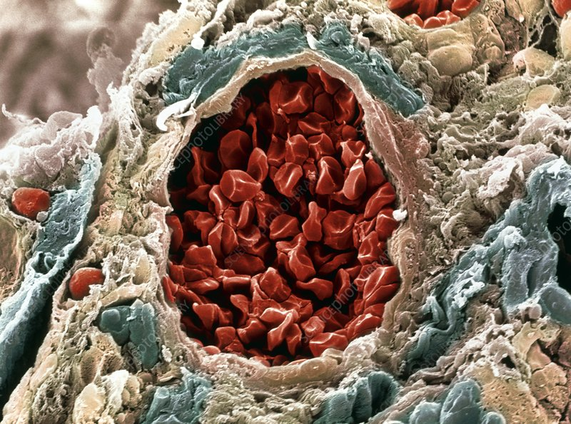 Colon cancer blood supply, SEM