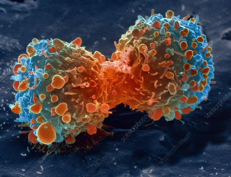 Lung cancer cell division, SEM