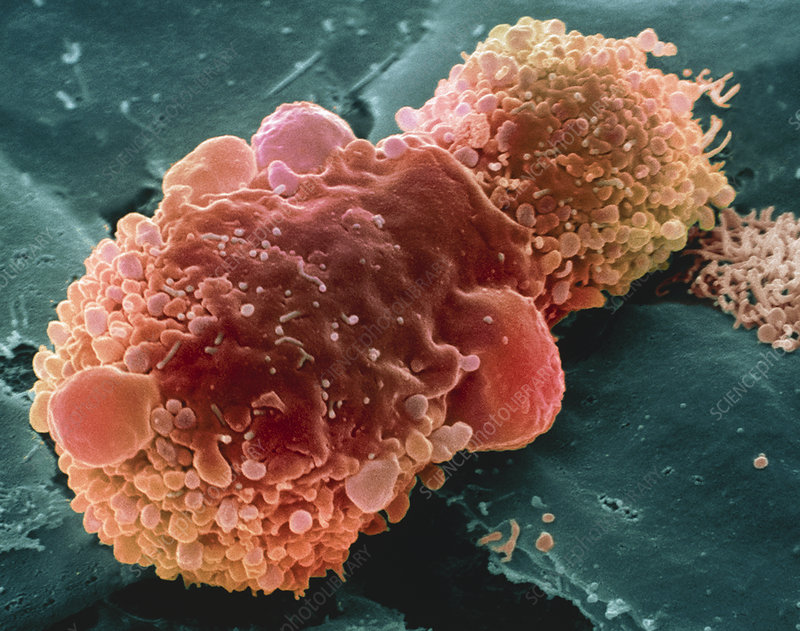 Lung cancer cell, SEM