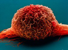 Bladder cancer cell, SEM