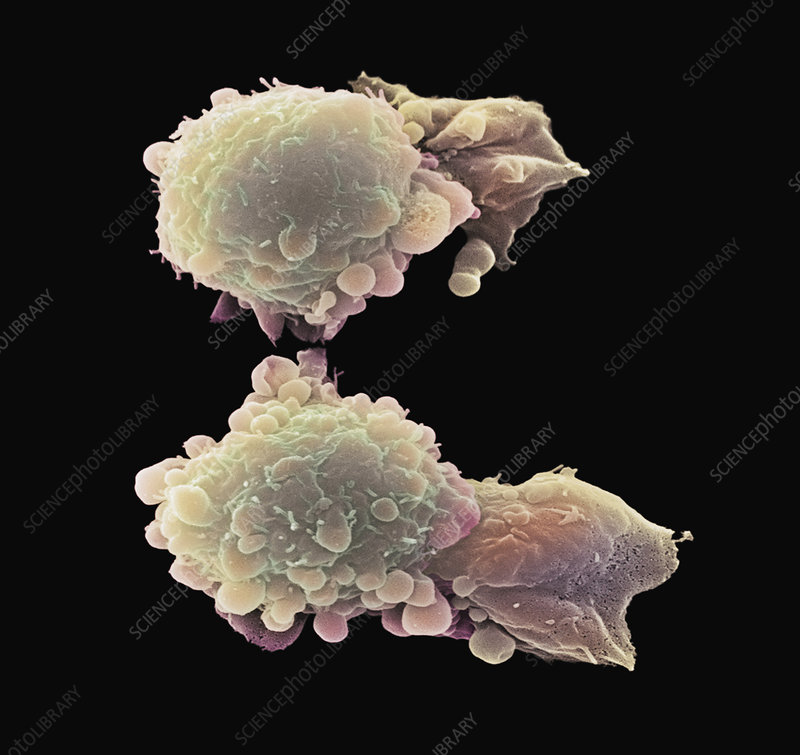 Skin cancer cells, SEM