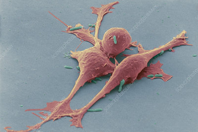Smooth muscle cancer cells, SEM
