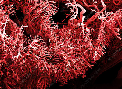 Tumour blood vessels, SEM