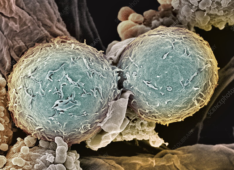 Leukaemia blood cells, SEM