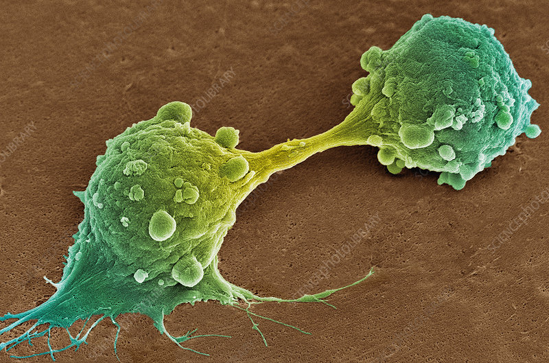 Cancer cell dividing, SEM