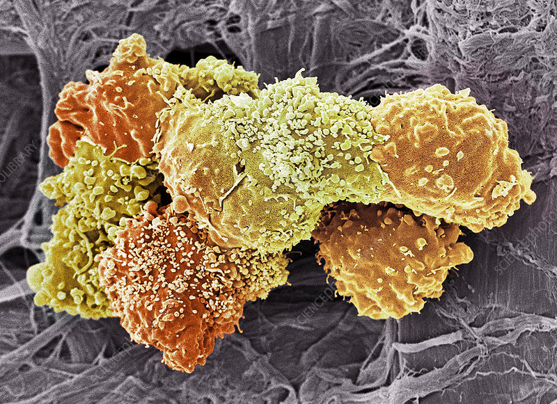 Teratoma cancer cells, SEM