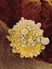 Pancreatic cancer cell, SEM