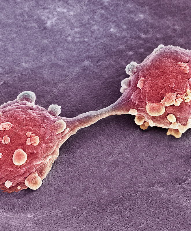 Bladder cancer cells dividing, SEM