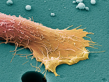 Prostate cancer cell, SEM