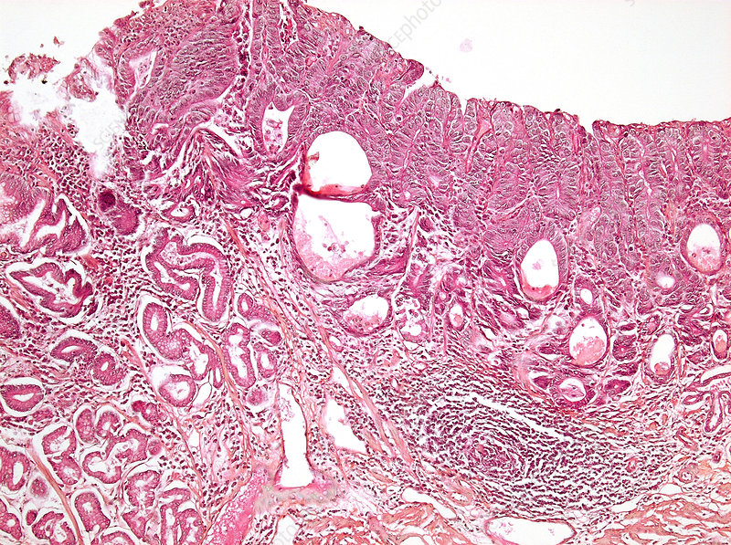 Stomach cancer, light micrograph