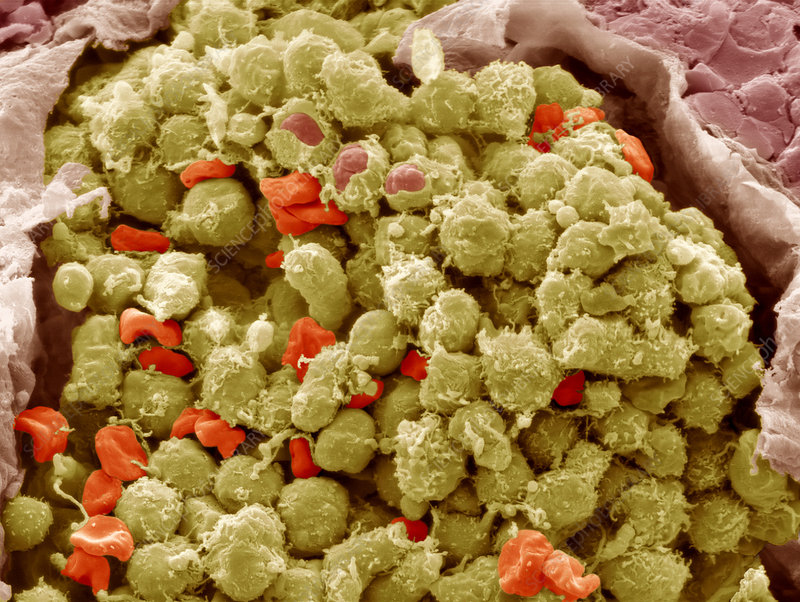 Lymphoma cancer cells, SEM