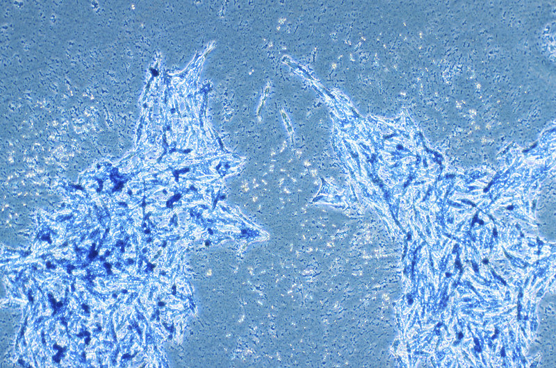 Skin cancer cells, light micrograph