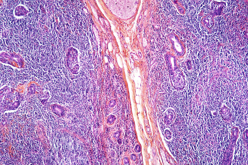 Salivary gland cancer, light micrograph