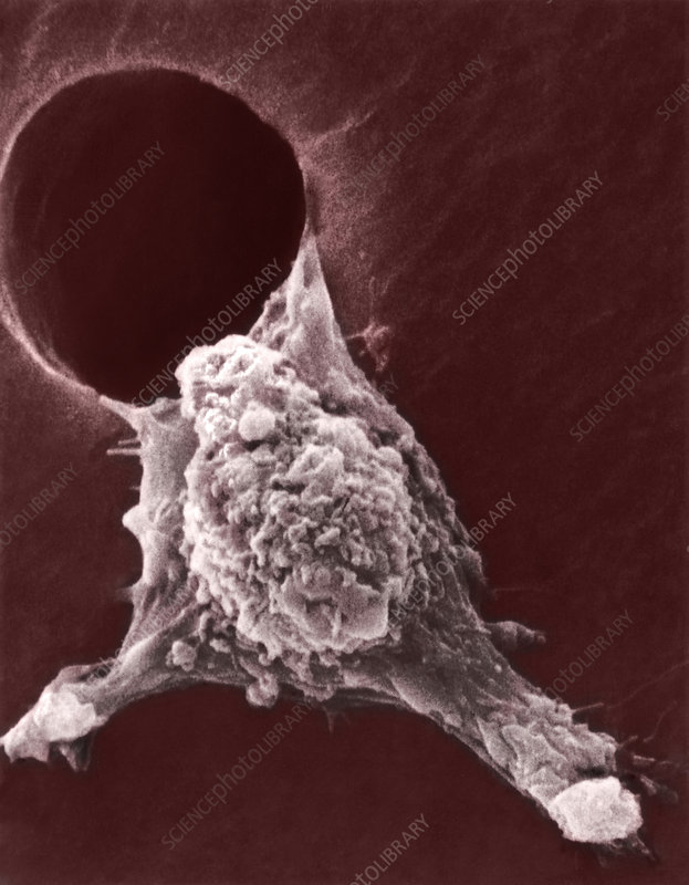 Metastasis of a cancerous cell, SEM