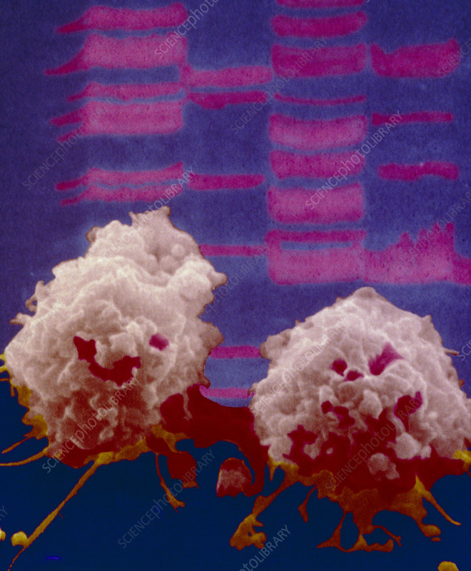 Lung cancer cells seen with DNA autoradiogram
