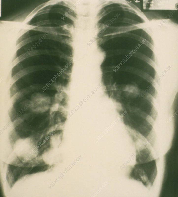 Chest x-ray showing cancer tumours in lungs