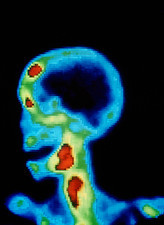 Gamma camera scan of skull of cancer patient