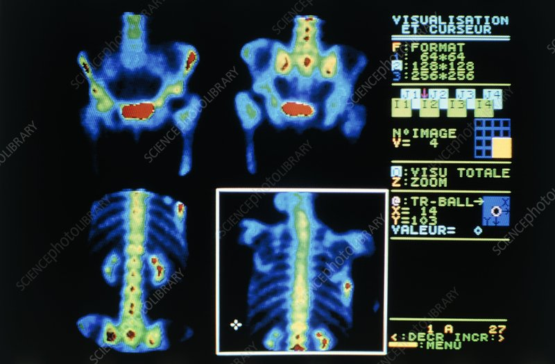 Gamma camera scans of person suffering bone cancer