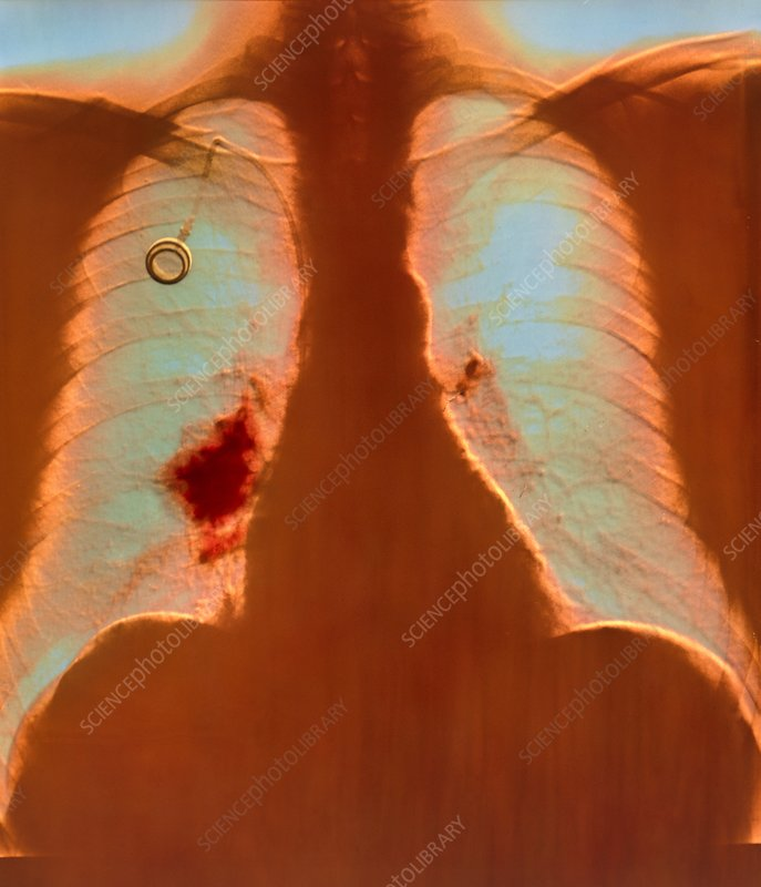 X-ray of lung cancer being treated by interleukin