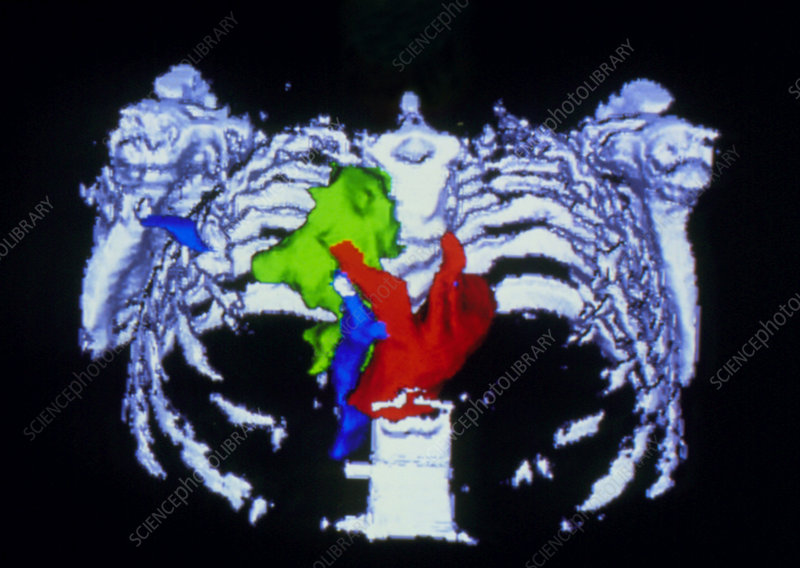 False-colour 3-D CT scan of pancreatic cancer