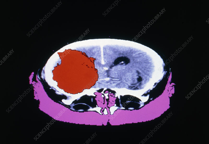 False-colour CT scan of glioblastoma brain tumour