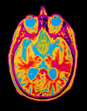 Coloured MRI brain scan: pituitary adenoma
