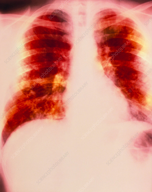 Coloured X-ray of secondary lung cancer