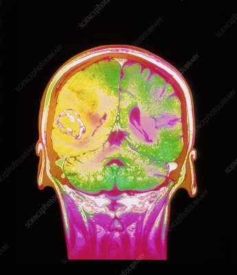 Coloured MRI scan of a metastatic brain tumour