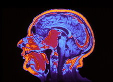 Coloured MRI brain scan of a pituitary tumour