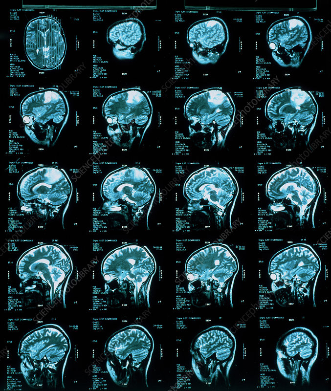 Brain cancer scans
