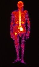 Coloured Gamma scan of metastatic thyroid cancer