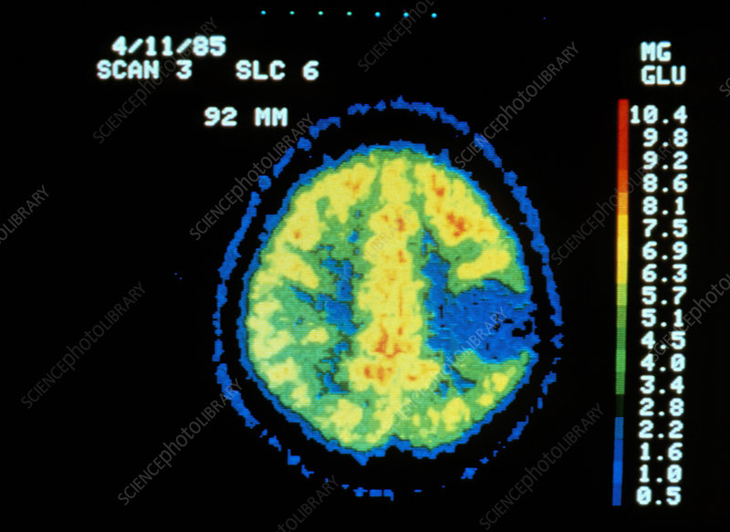 Coloured PET scan of the brain showing a tumour