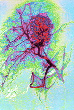 Coloured angiogram X-ray of a tumour in the liver