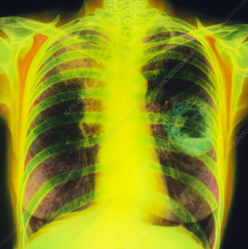Coloured chest X-ray showing lung cancer