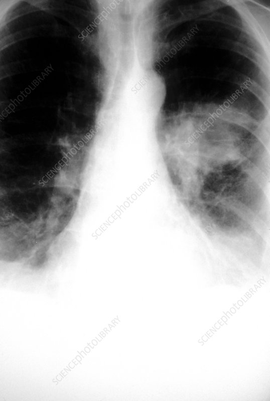 Chest X-ray of 62 year old woman with lung cancer