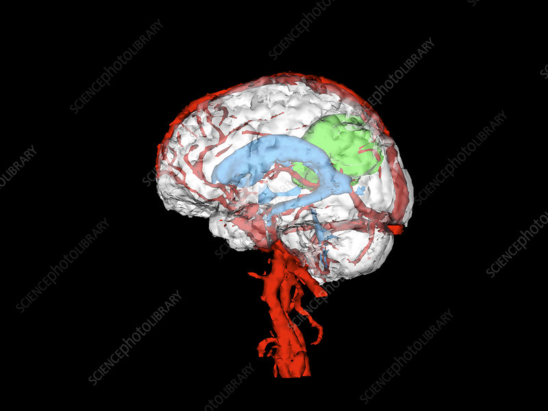 3-D MRI scan of a brain with tumour