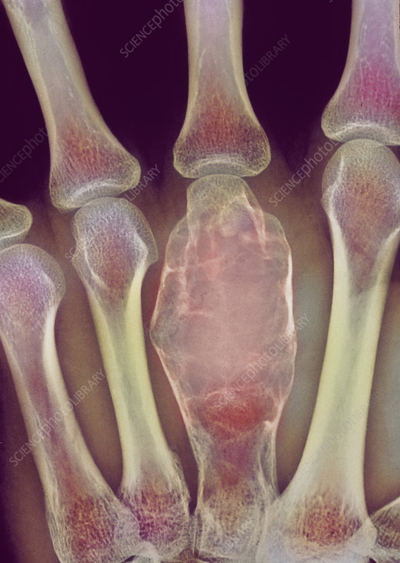 Bone cancer X-ray