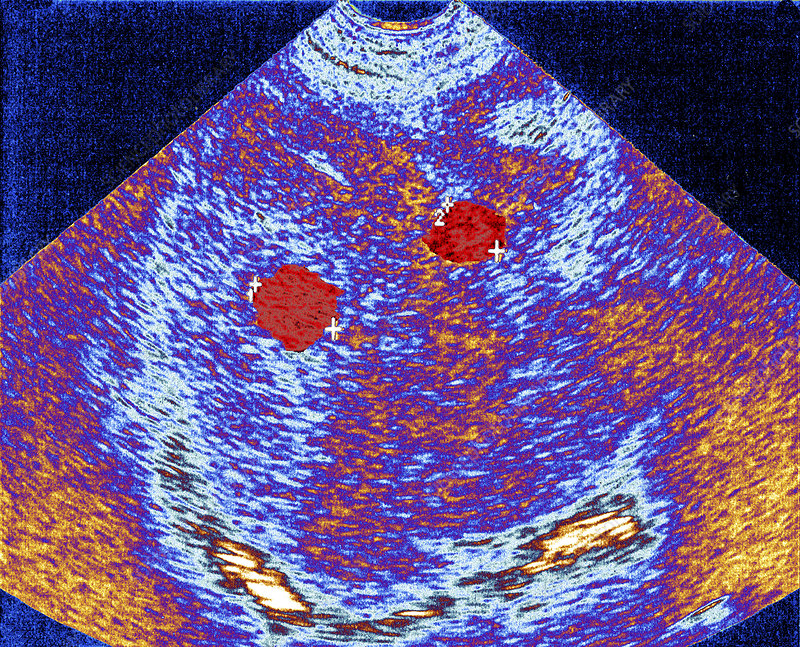 Liver cancer, ultrasound scan