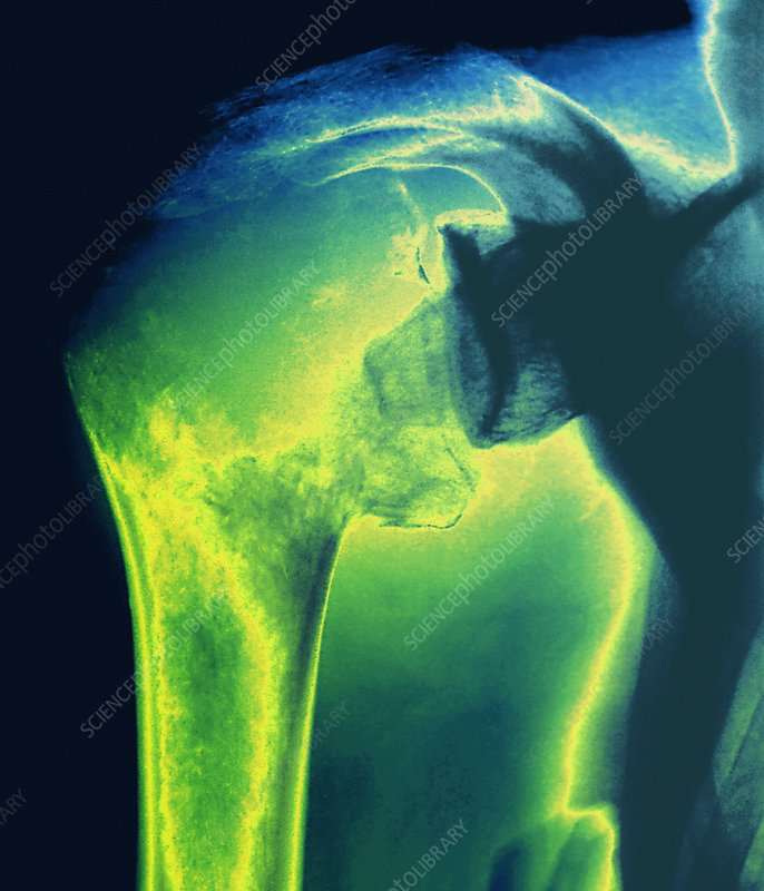 Bone cancer, X-ray