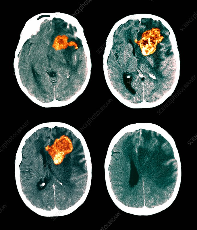 Brain cancer, CT scans