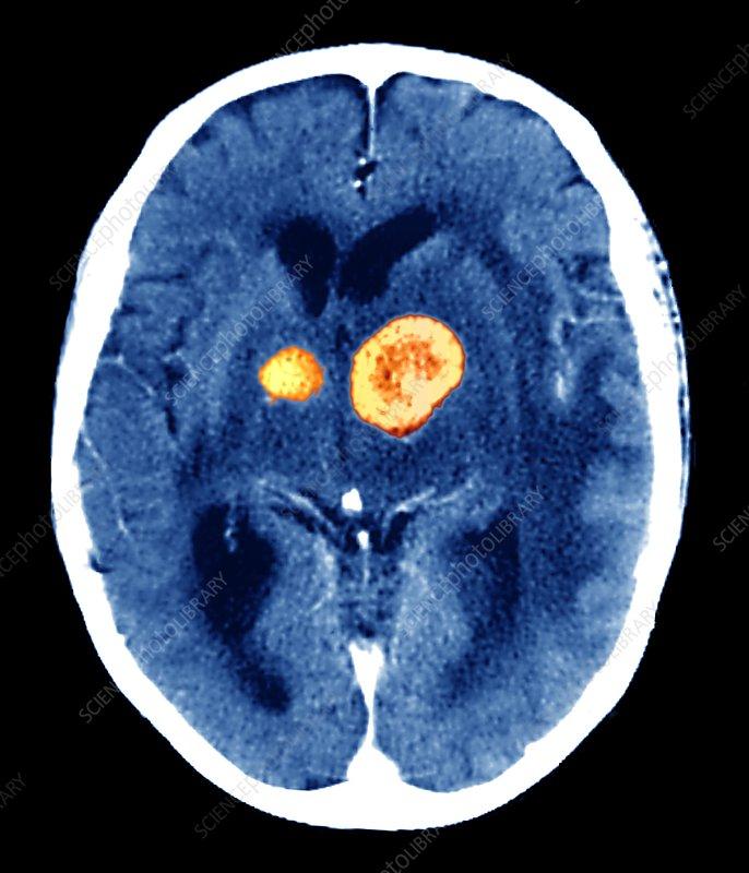 Brain cancer, CT scan