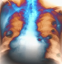 Lung cancers, X-ray