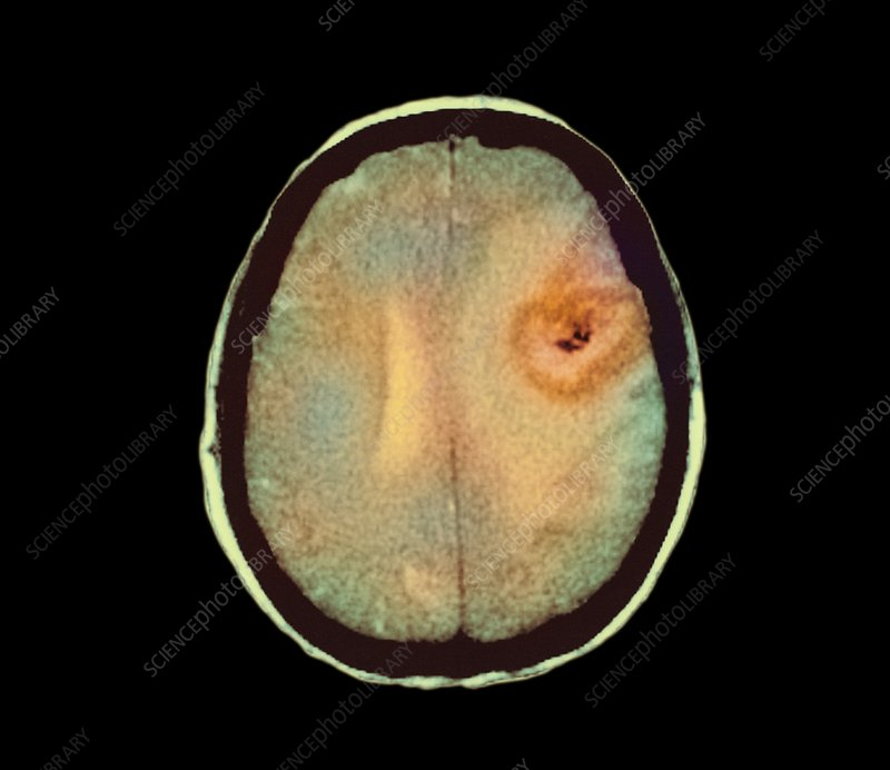 Astrocytoma brain cancer, CT scan