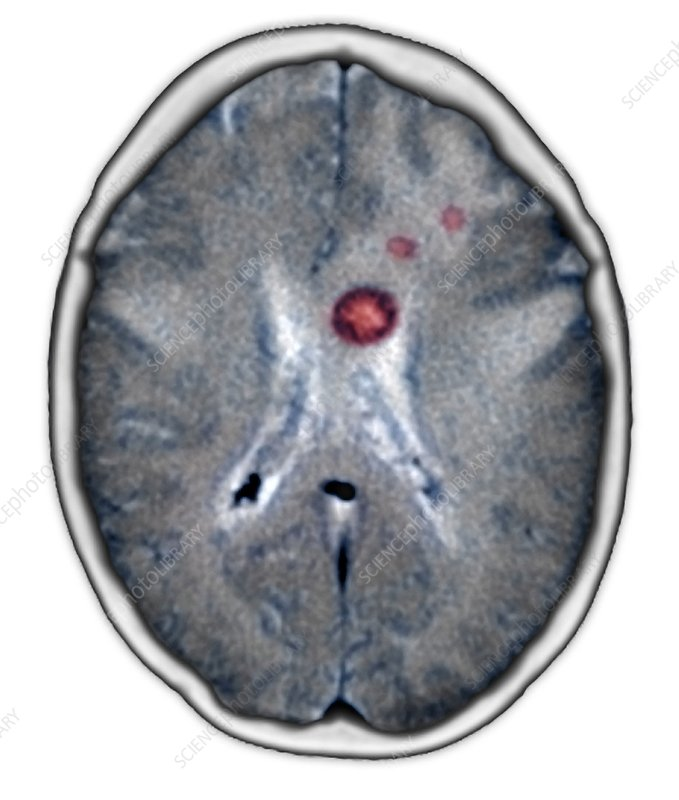 Secondary brain cancers, CT scan