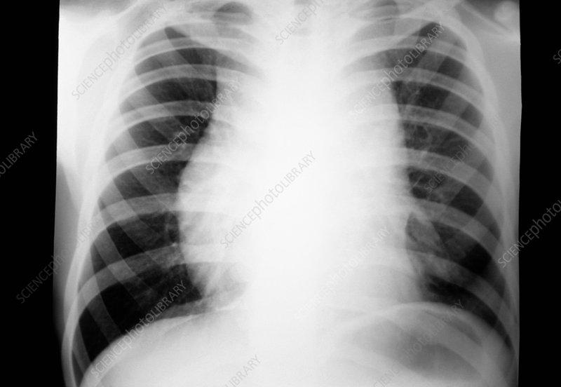 Hodgkin's disease, X-ray