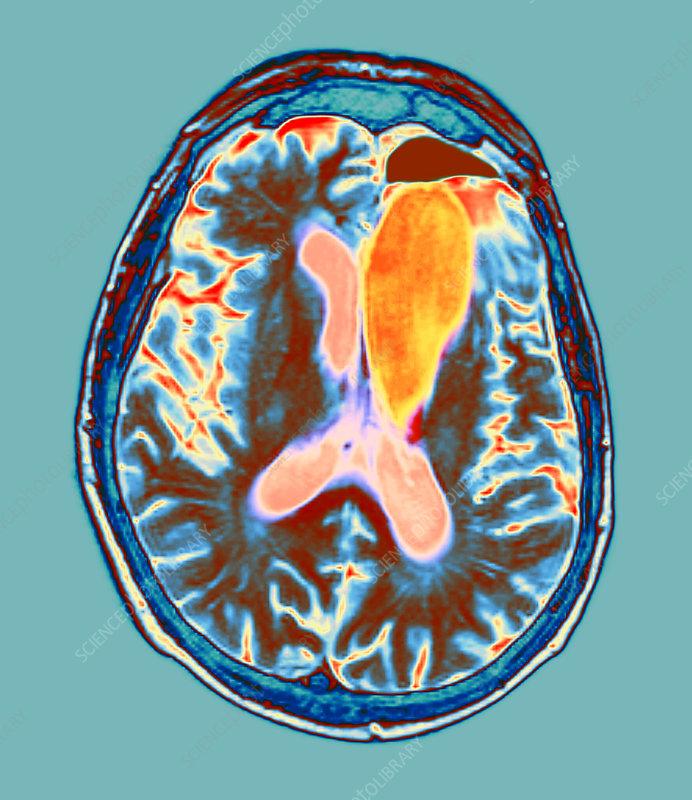 Brain cancer treatment, MRI scan