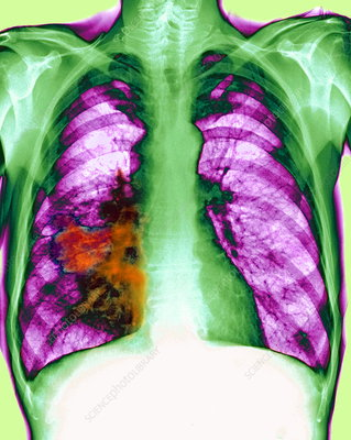 Lung cancer, X-ray